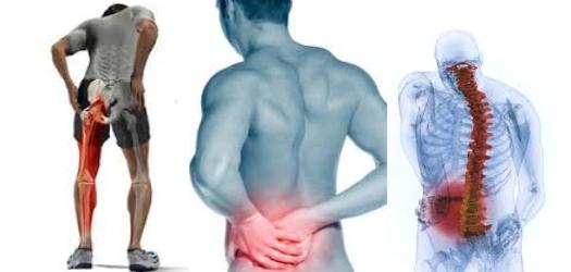 Comment soulager une douleur sciatique naturellement ?