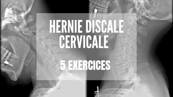 Hernie Discale Cervicale : 5 exercices qui soulagent