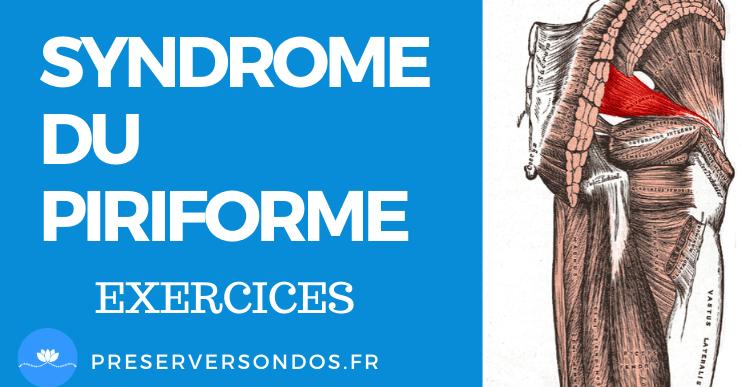 Syndrome du Piriforme : Causes, Symptômes, Traitement