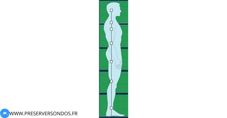 hyperlordose lombaire posture