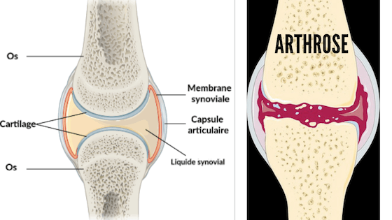 soigner arthrose naturellement cartilage