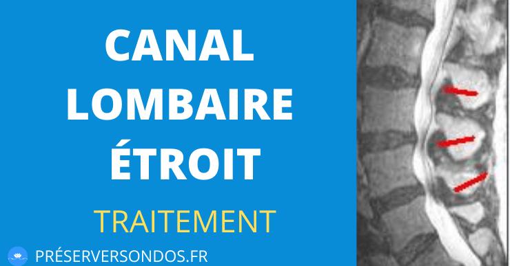 Canal Lombaire Étroit : 3 Conseils pour le Traiter Facilement