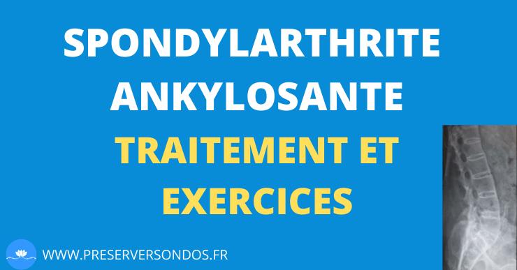 Spondylarthrite ankylosante : Traitement et Exercices Pour se Sentir Mieux au Quotidien
