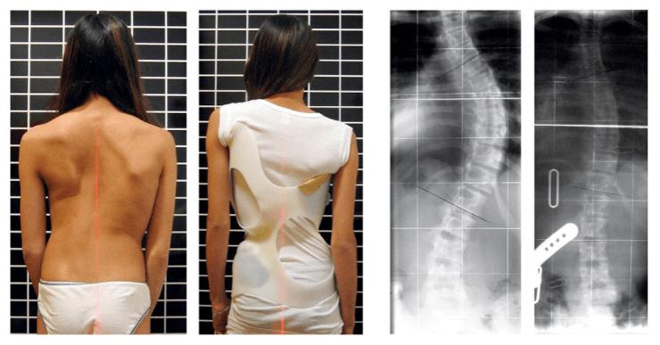 scoliose traitement corset